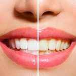 Blanqueamiento-dental-imagen